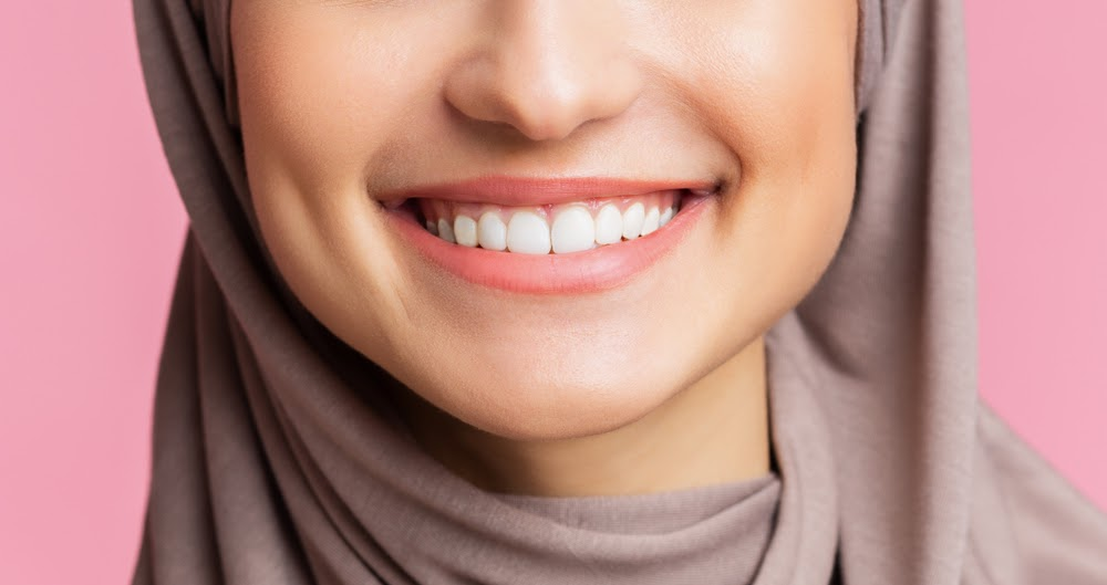 Discover The Benefits Of Veneers With IBO